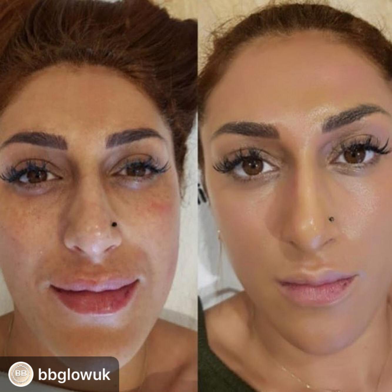 BB Glow Facial   Cardiff Beauty Clinic